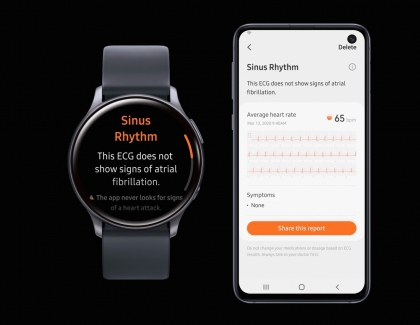 Electrocardiogram Monitoring Cleared for Galaxy Watch Active2 by South Korea