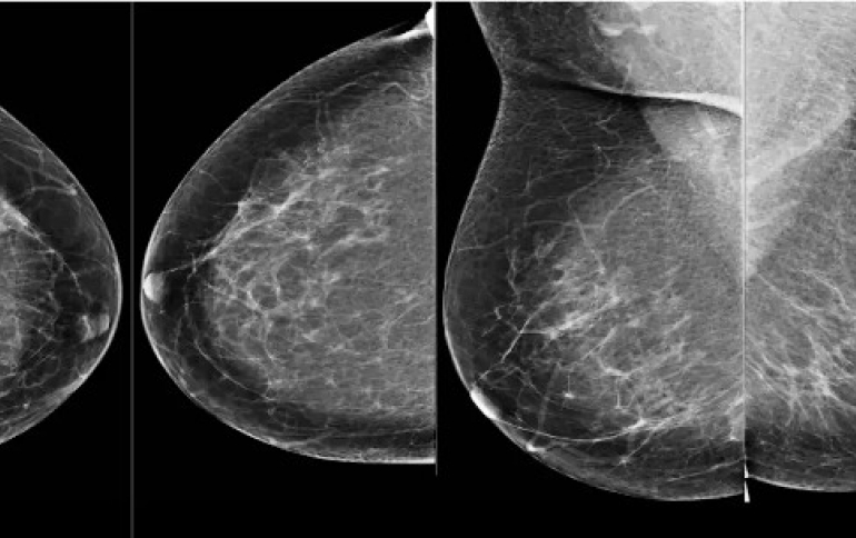 Google AI System Could Used to Detect Breast Cancer Detection